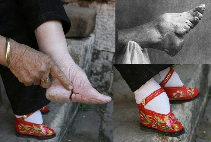 FootBinding ridiculous fashion trend