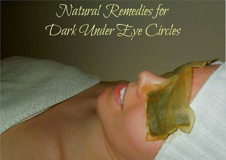 Natural Remedies for Dark Under Eye Circles