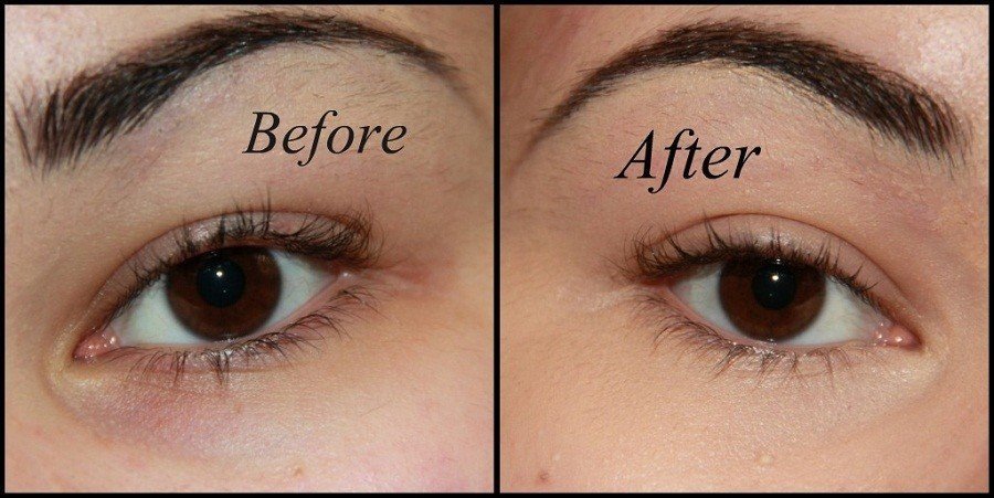 Before After Undereye Circles