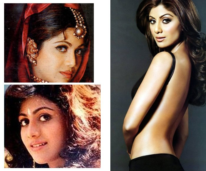 Shilpa Shetty Plastic Surgery