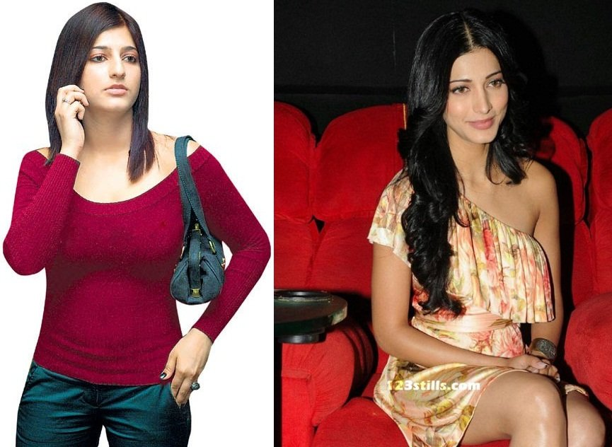Shruti-Haasan-plastic-surgery