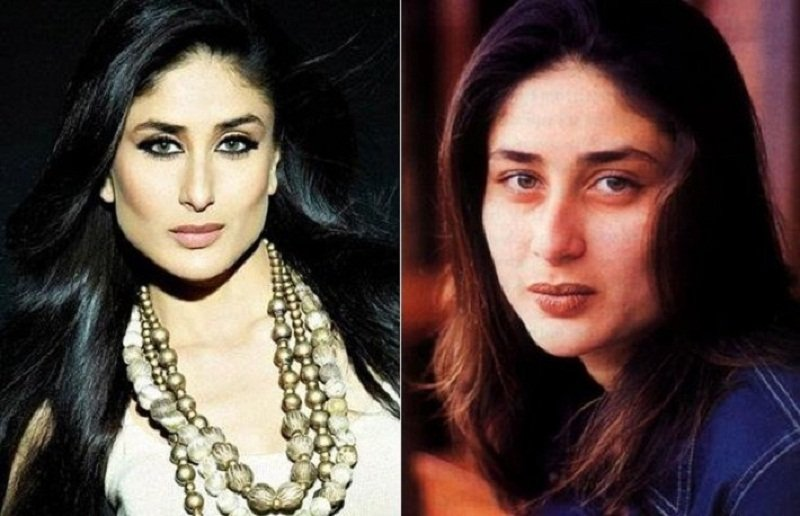 kareena-kapoor-plastic-surgery