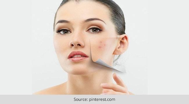 Acne Treatment Masks
