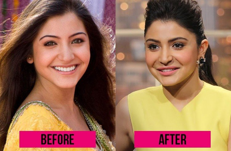 Anushka Sharma lip surgery