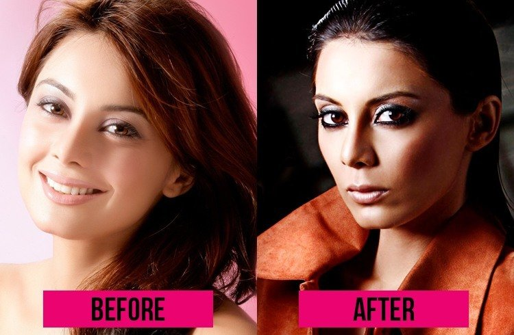 Minishaa Lamba Plastic Surgery
