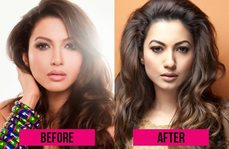 Gauhar Khan Before and After Surgery