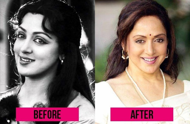 Hema Malini before and after Surgery