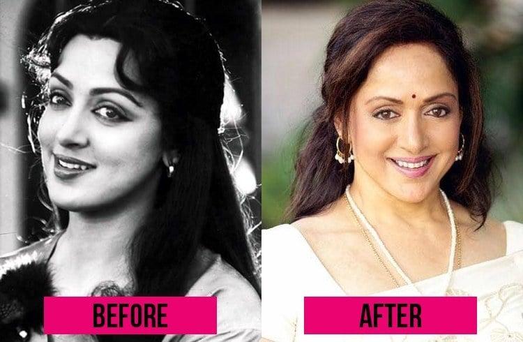 Hema Malini before and after Surgery