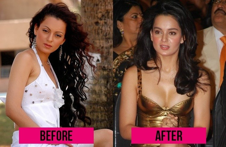 Kangna Ranaut Surgery Failure