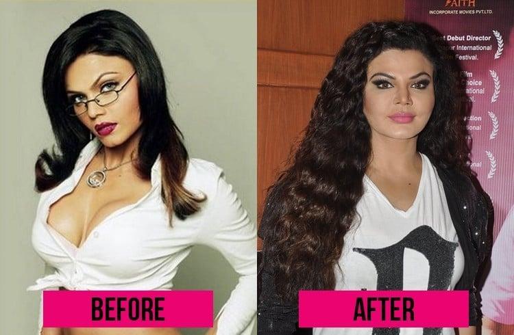 Rakhi Sawant plastic Surgery