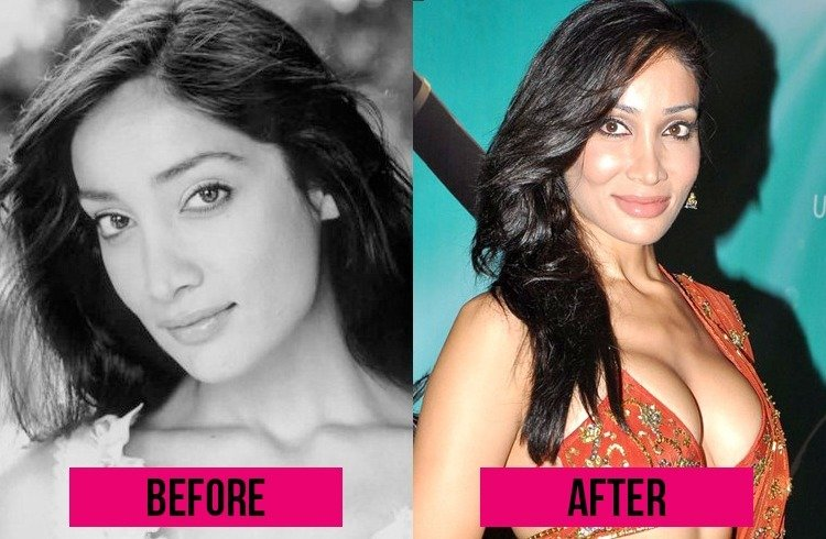 Sofia Hayat Lip Surgery