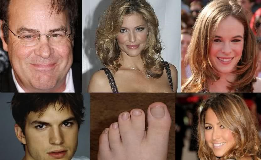 16 Celebrities With Super-Freaky Physical Deformities ...