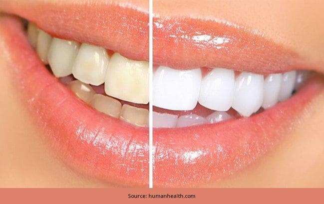 5-Remedios-caseros-económicos-para-dientes-más-blancos
