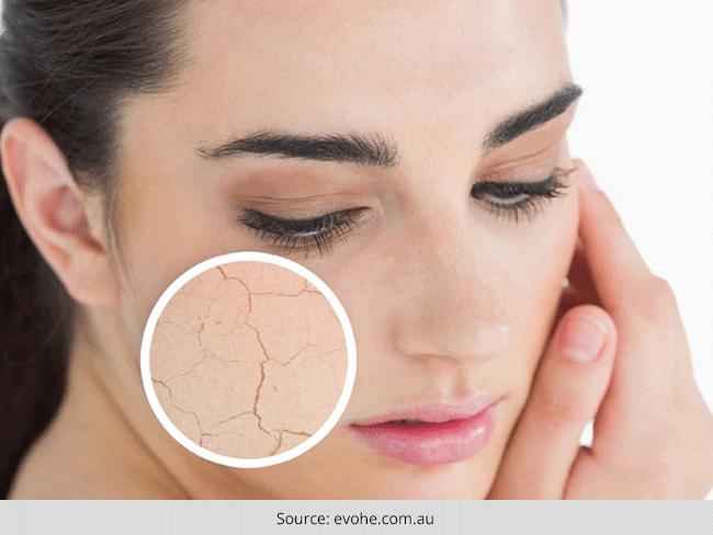 Dry Skin Vs Dehydrated Skin