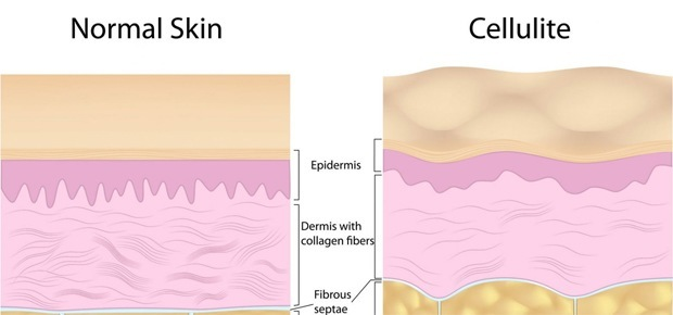 Cellulite and Its Formation
