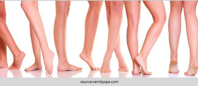 Home remedies to cure Spider Veins