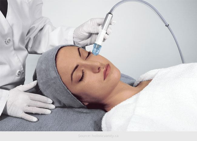 How Microdermabrasion Works
