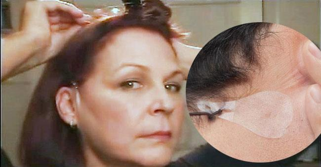instant face lift and neck lift