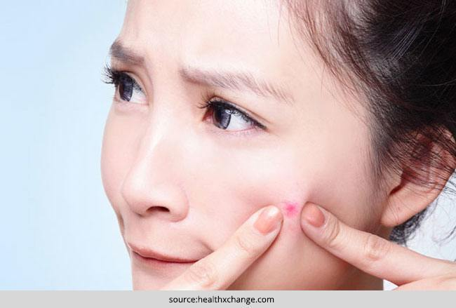 Acne Breakouts 5 Foods that Cause Acne and Breakouts