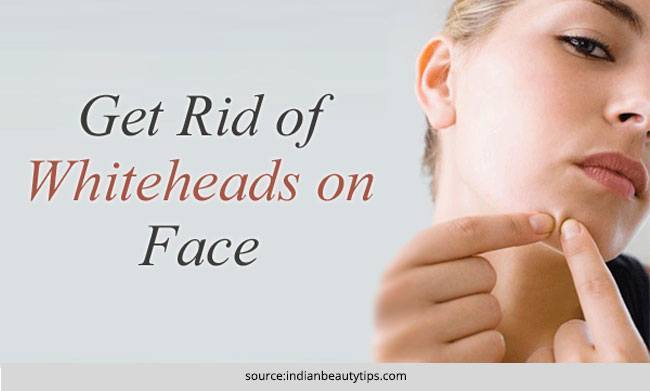 Best Home Remedies for Whiteheads