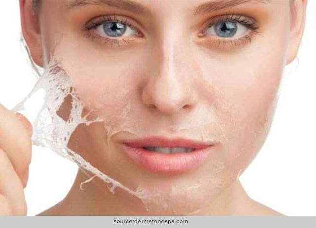 Chemical Peels - Everything You Wanted to Know About it