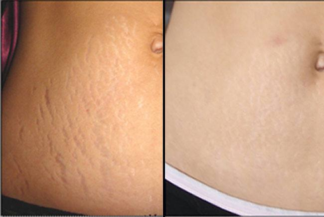 Hide Stretch Marks with Makeup