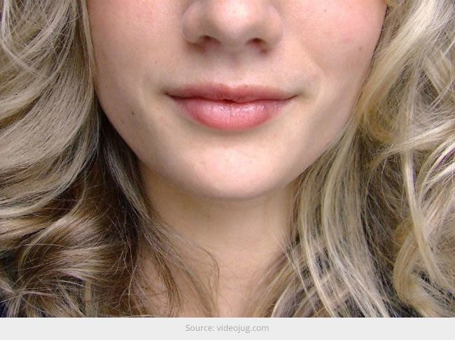 How to Get Rid of Cold Sores at Home