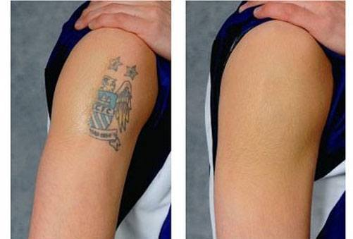 How To Remove A Permanent Tattoo: DIY Methods and Surgical Methods
