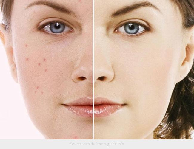 Possible Reasons Your Skin Prone Acne