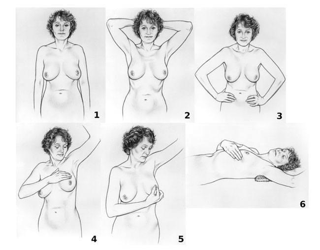 Breast Cancer Self Examination