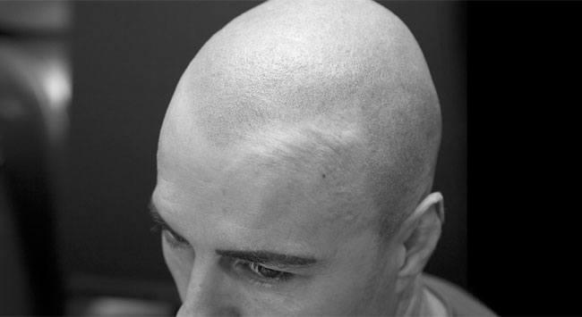 Different scalp types
