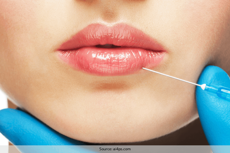 What is Lip Augmentation Should one go for it