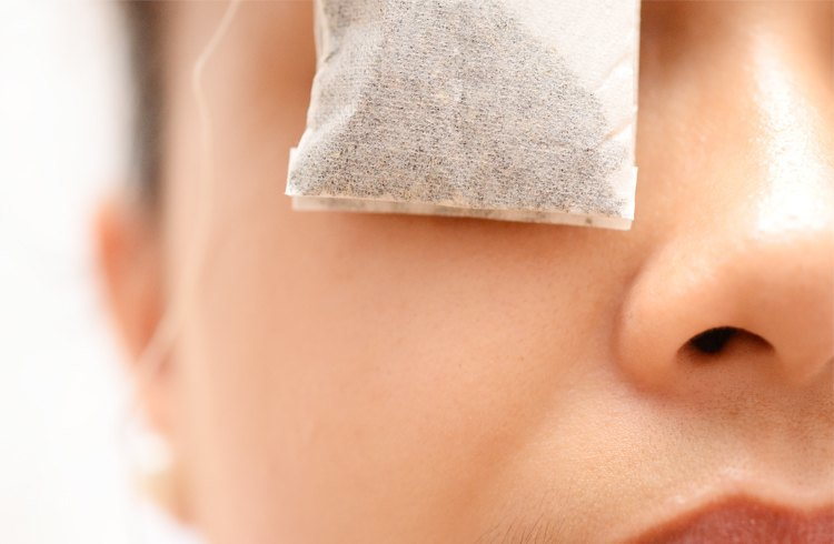 Tea Bags for the Eye Treatment