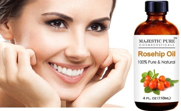 best natural oils for skin care