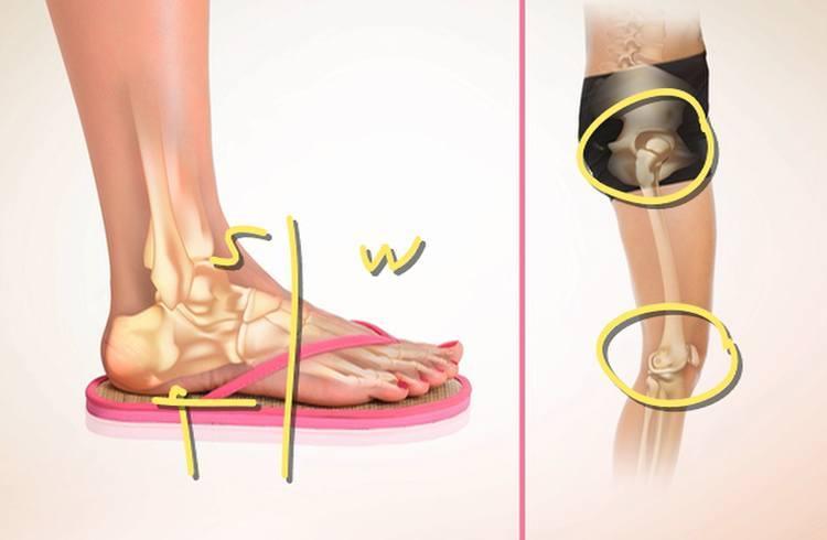 Flip flop health risk