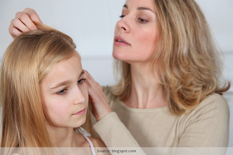 Treat Lice In Hair At Home