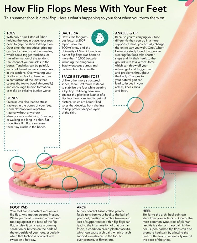 Tips  to avoid wearing flip-flops