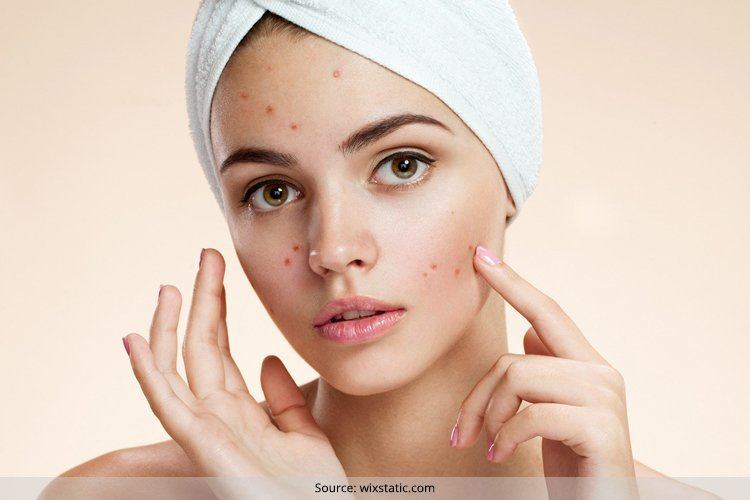 DIY Pimple Treatment For Oily Skin