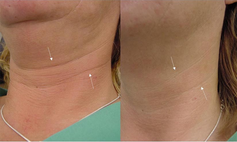 Treatment For Neck Wrinkles