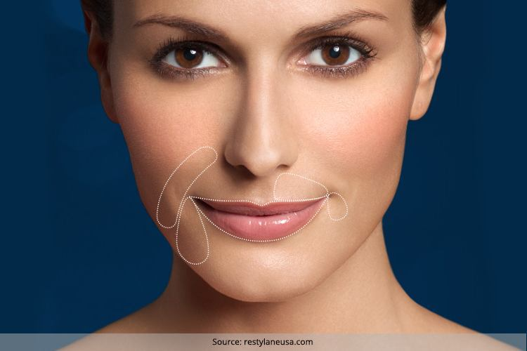 Get Rid Of Lines Around Mouth 26