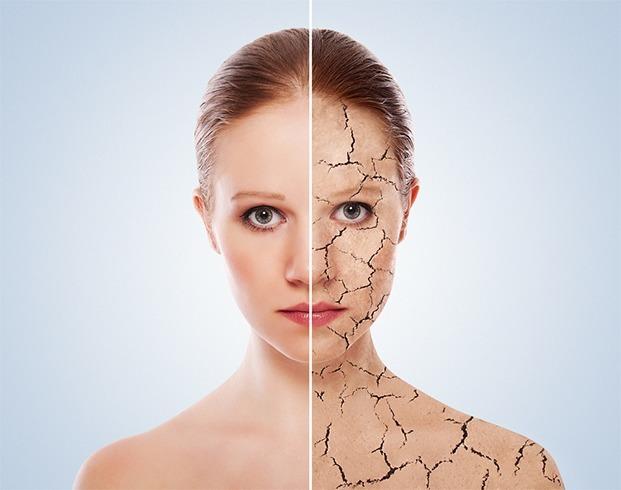 Dry spot on skin