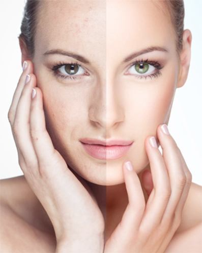 how do chemical peels work