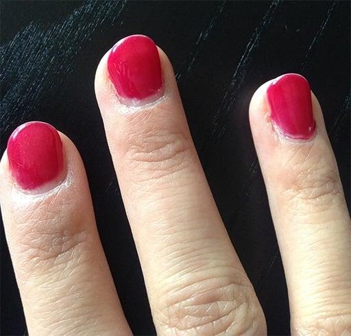 Skin Peeling Around Nails