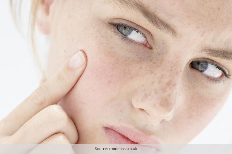 treatment for dry skin acne