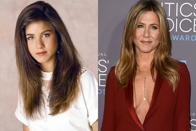 Jennifer Aniston before and after plastic surgery