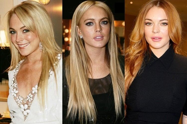 Plastic Surgery Hollywood