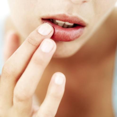 symptoms of dry lips