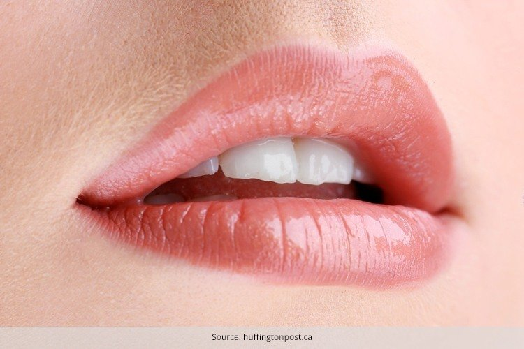 treatment for chapped lips