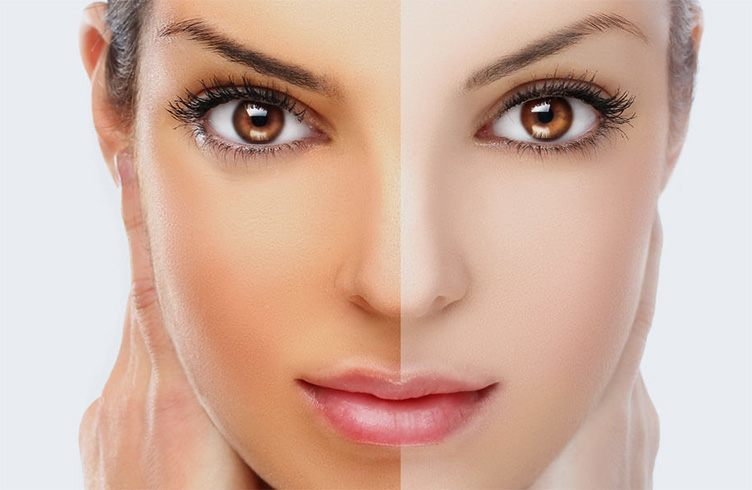 how to get lighter skin in one day