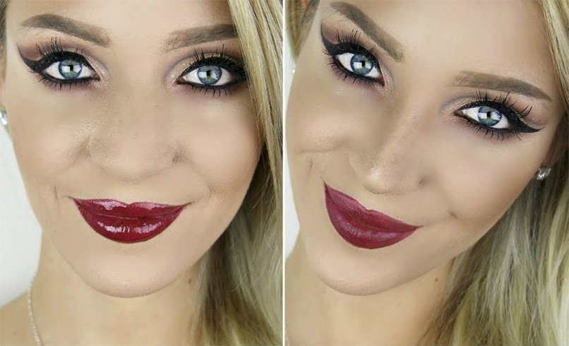 Nose Jobs Before And After
